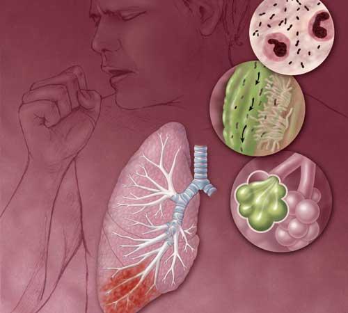 Infeksi Saluran Pernafasan Akut Sembuh Minum Teh Hitam Ou
